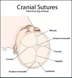 Metopic Suture Closure Related Keywords - Metopic Suture ...